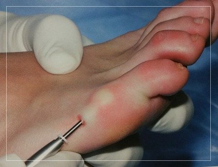 MINIMALLY INVASIVE FOOT SURGERY