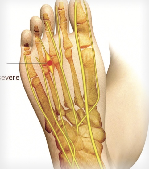 Morton's Neuroma Pain