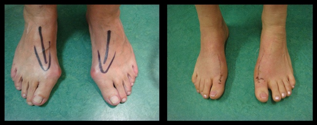 foot bunion removal surgery