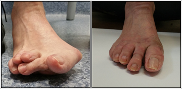 Revision Of Failed Foot Surgery